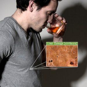cirrhosis-of-liver-causes